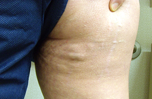Can Stomach Acid Cause Chest And Back Pain